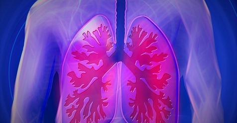 Une IA signée Google capable de détecter le cancer du poumon