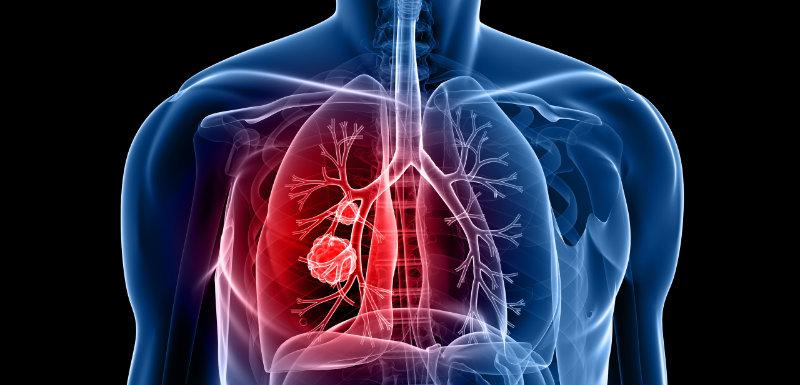 Dépistage du cancer du poumon en Allemagne : another brick in the wall !