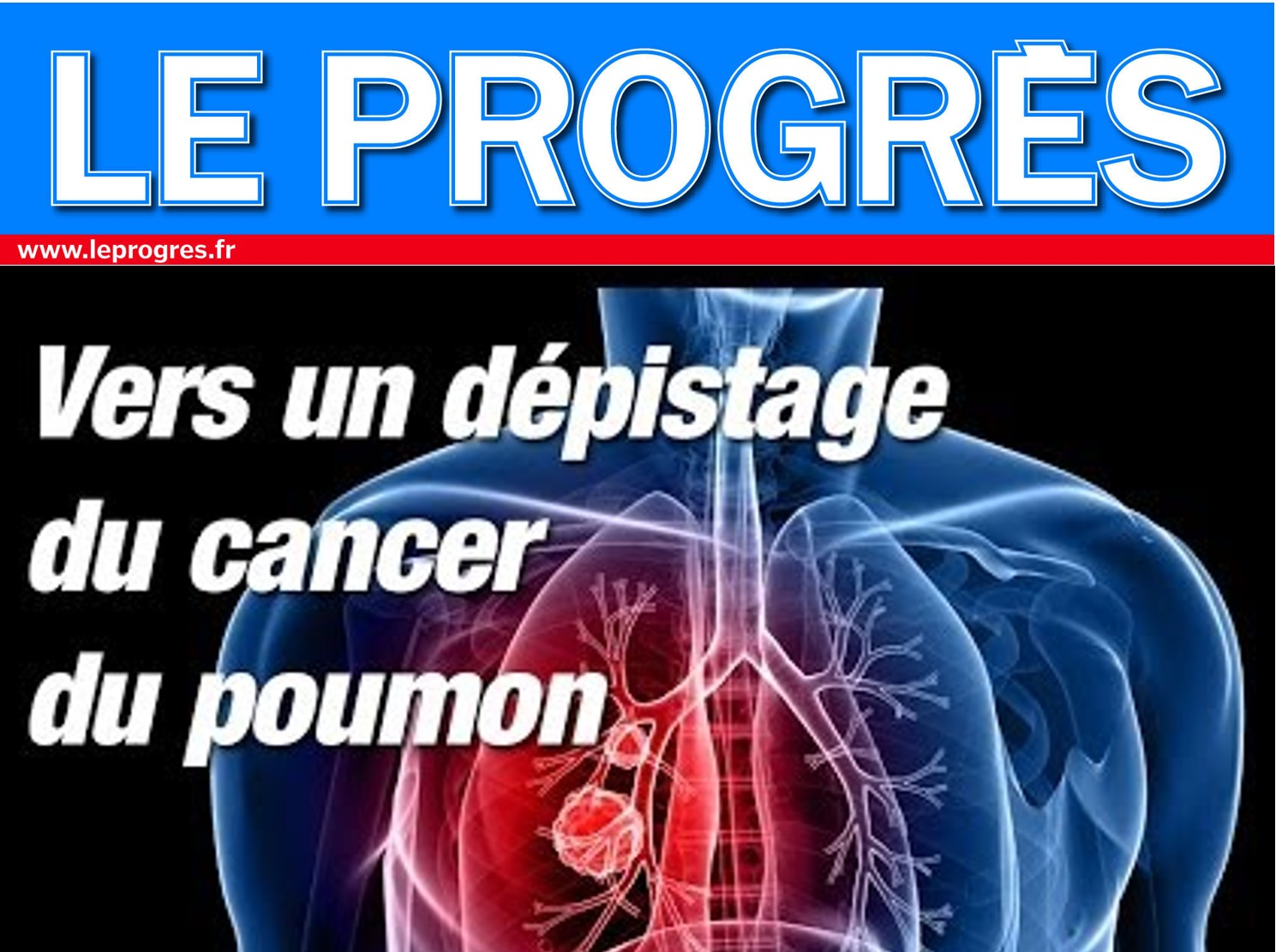 Le cancer du poumon est une maladie, pas une punition